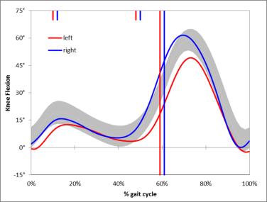 Nice gait graph