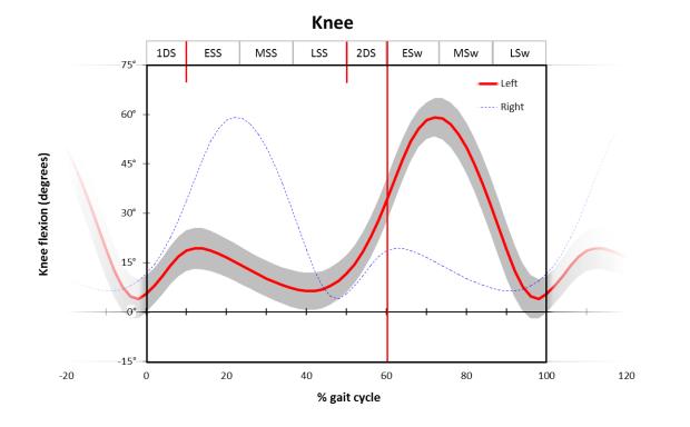 Knee graph
