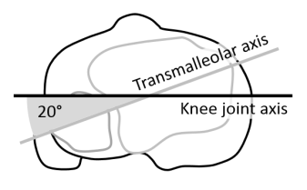 Tibial torsion